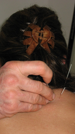 Dr. Gregg Hebeisen performing acupuncture at Advanced Health PA